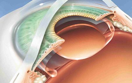 Lentilles intraoculaires, Chirurgie de l'oeil, Centre d'ophtalmologues Vista Alpina, Viège, Sierre, Valais