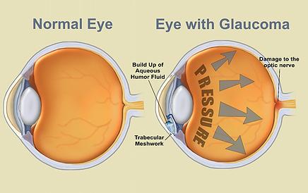 Glaucoma, Vista Alpina Eye Center Valais