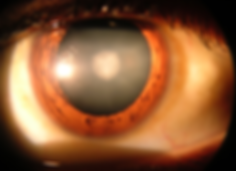 Grauer Star (Katarakt), Vista Alpina Augenklinik