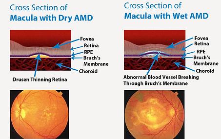 Age-related macular degeneration, Vista Alpina Eye Center Valais
