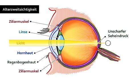 Hornhautverkrümmung, Vista Alpina Augenklinik Visp