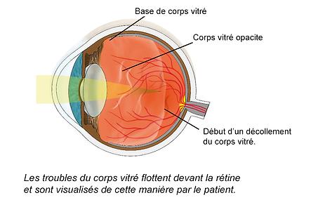 Décollement du corps vitré, Chirurgie de l'oeil, Centre d'ophtalmologues Vista Alpina, Viège, Sierre, Valais