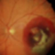 Altersbedingte Makuladegeneration, Vista Alpina Augenklinik Visp