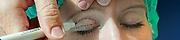 Opérations de la paupière, Chirurgie de l'oeil, Centre d'ophtalmologues Vista Alpina, Viège, Sierre, Valais