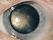 Katarakt- so sieht eine Katarakt (fortge