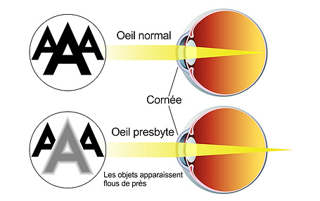 Presbytie, , Centre d'ophtalmologues Vista Alpina, Viège, Sierre, Valais