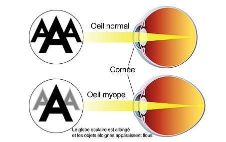 Myopie, , Centre d'ophtalmologues Vista Alpina, Viège, Sierre, Valais