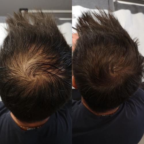 tricopigmentazione testa