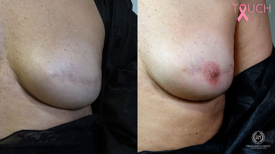 prima-dopo-mastectomia-areola-mammaria