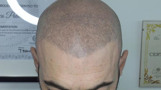 dettaglio tricopigmentazione