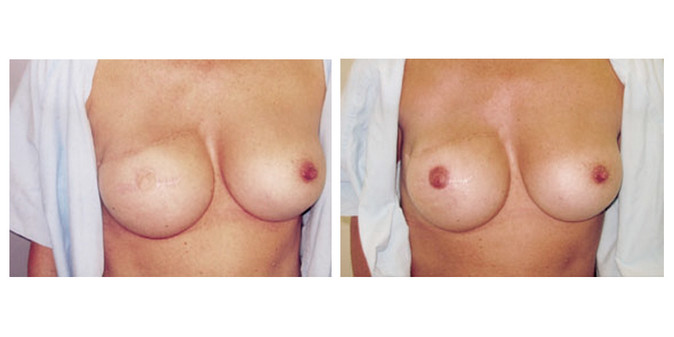 Areola Before & After 2.jpg