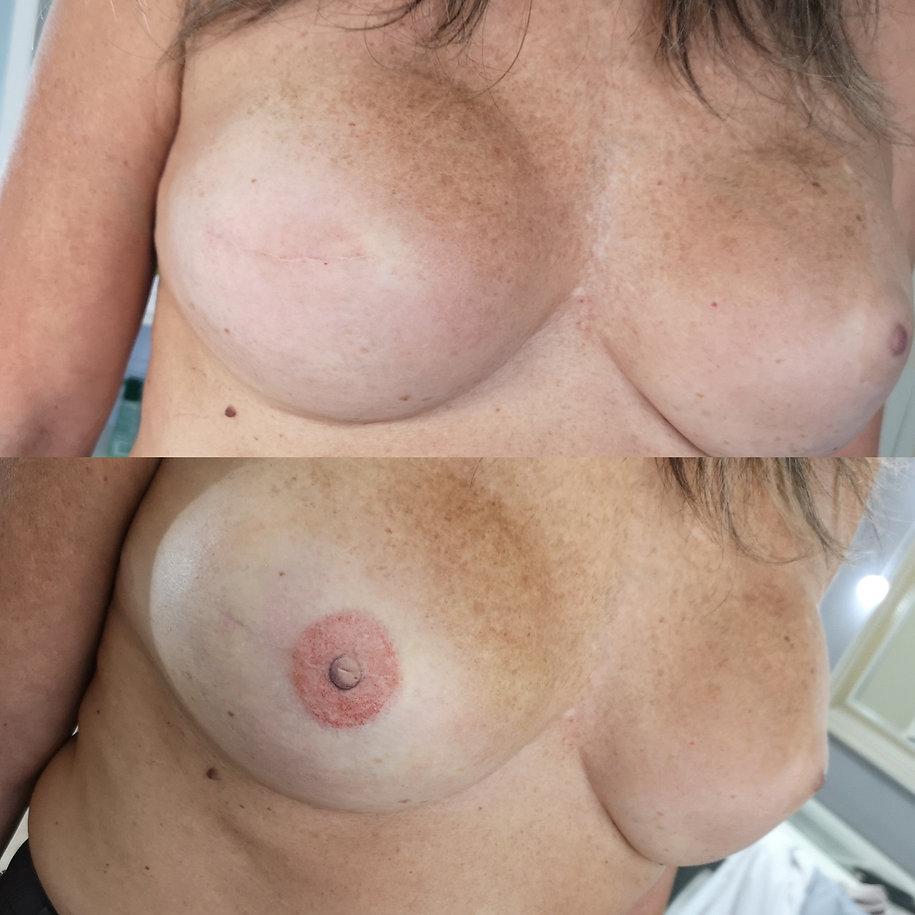 prima e dopo micropigmentazione paramedicale