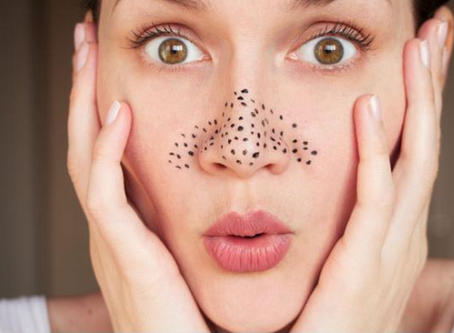 What are Blackheads?