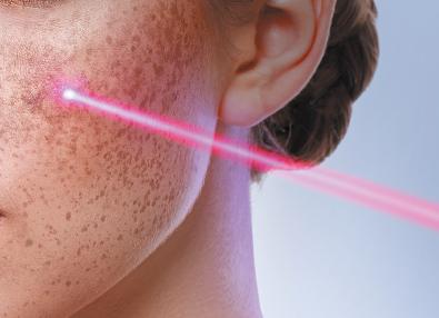 Pico for Freckles/pigmentation