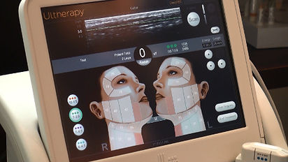 Ultrasound_Imaging_Ultherapy_Device_Web.