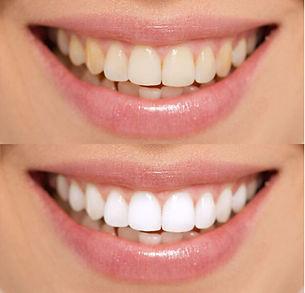 3 cosmetic teeth whitening 1.jpg