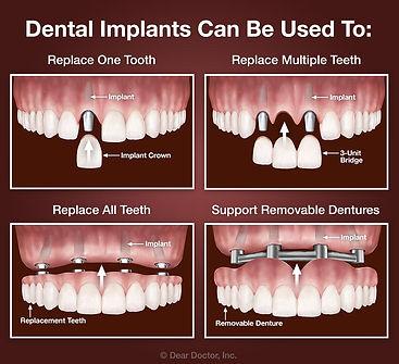 1 dental implants 3.jpg