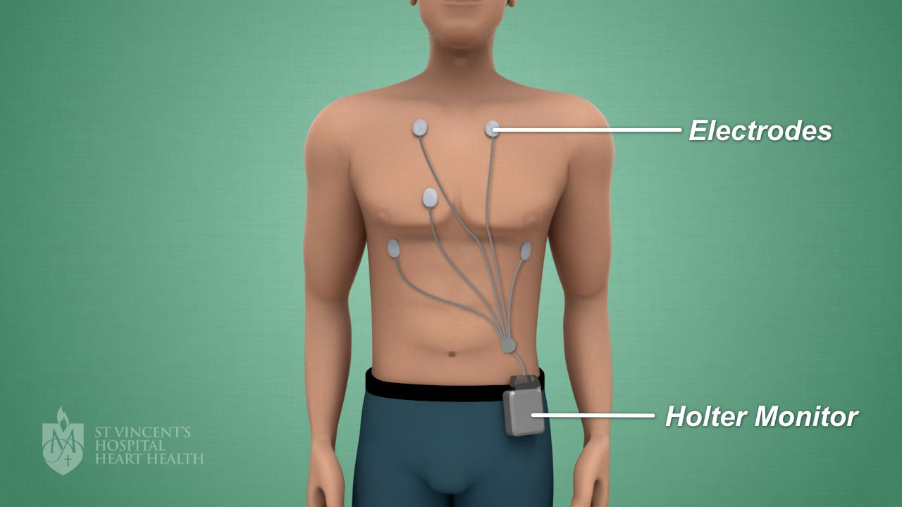 Exame: Holter