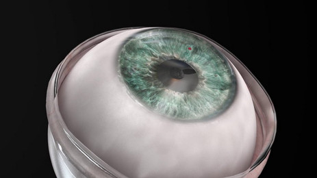 Synthetic Cornea transplant restores the sight of a 78-yr old blind man