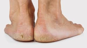 Are you conscious of your cracked heels or sore skin?