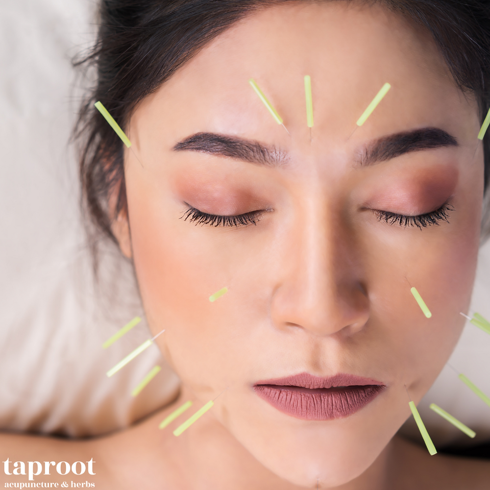 Woman receiving acupuncture for TMJ with multiple needles on her face and jaw area