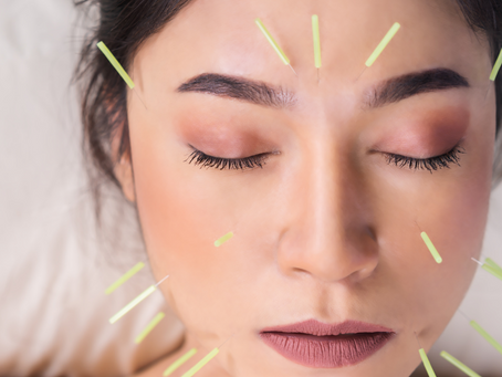 Acupuncture for TMJ disorders: unclench your jaw !