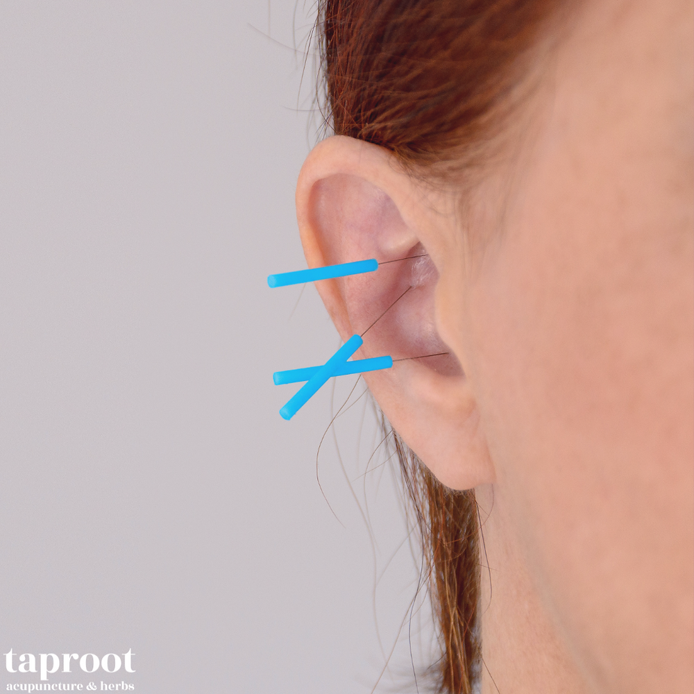 ear acupuncture for pregnancy labor breech
