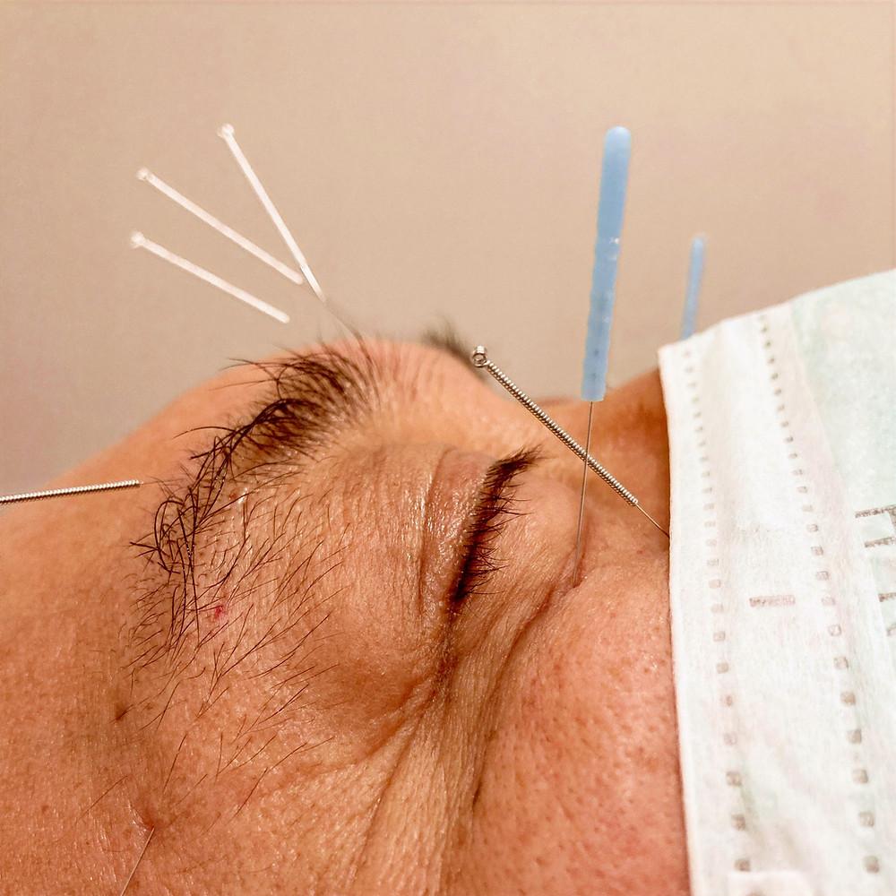 ocular acupuncture