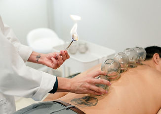 Doctor Sarah Bentolila doing cupping on a patient