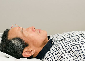 Acupuncture patient with needles