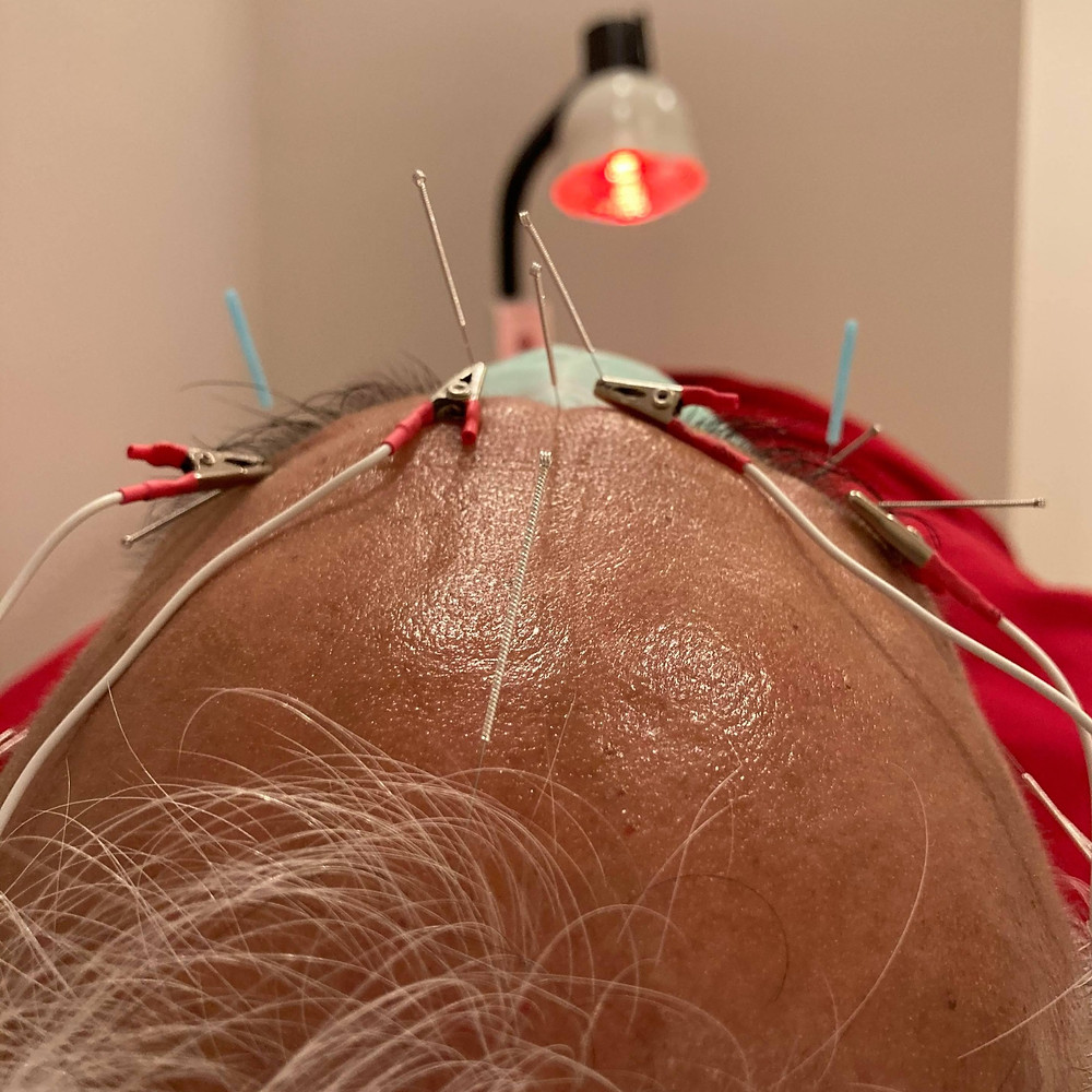patient receiving acupuncture for retinitis pigmentosa