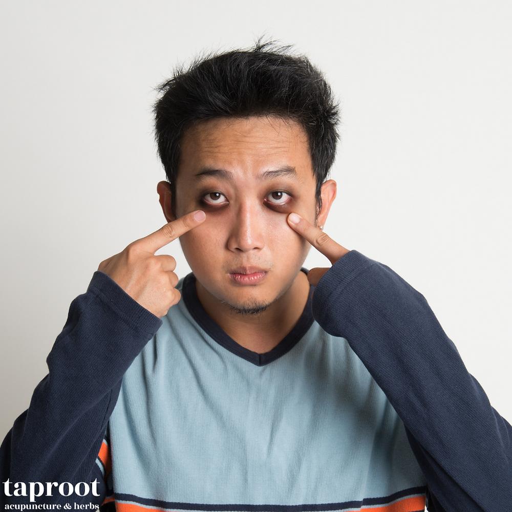 man with dark eye circles
