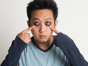 7 tips to get rid of dark eye circles, & what Chinese medicine says about them