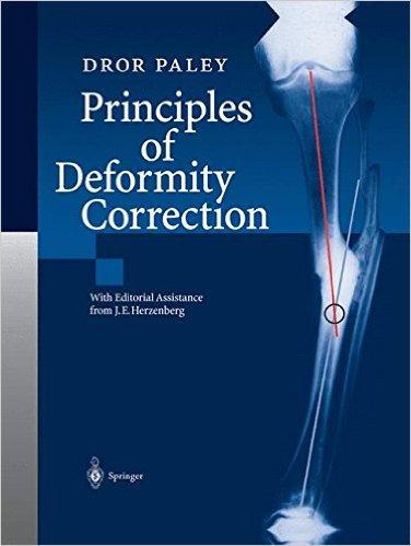 Paley-Principles of Deformity Correction