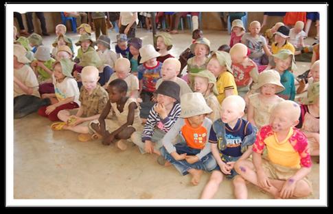 ALBINO-CHILDREN-PIC2.png