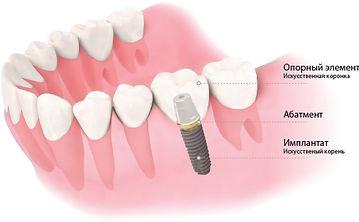 tooth_model.jpg