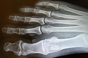 dorsal foot.jpg