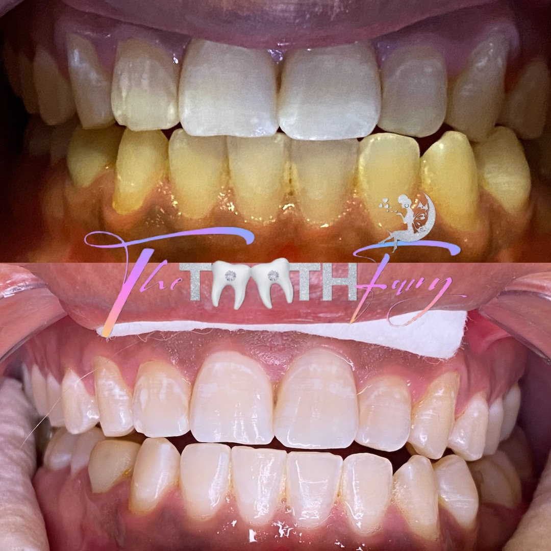 40 Minute Whitening Session
