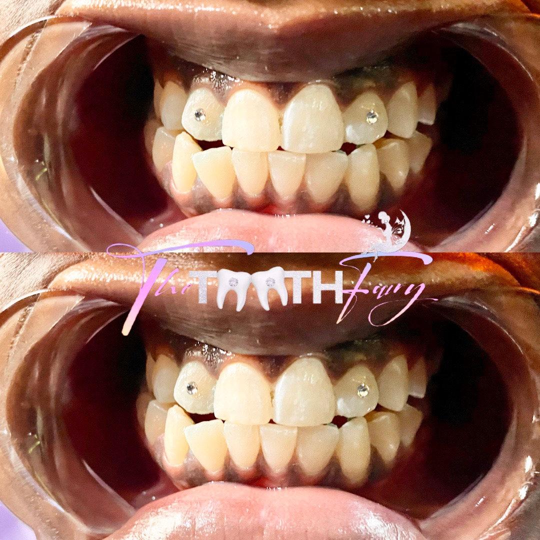 2 Tooth Gems 💎✨