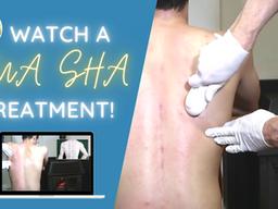 Watch a Gua sha treatment!
