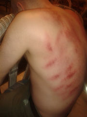 Gua sha petechiae Clive Witham guide acupressure stretching
