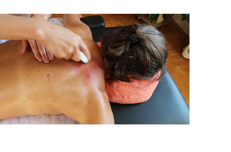 Gua sha for Coughs, colds and flu - upper back