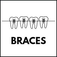 SVC-braces.jpg