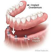 implant-overdentures-300.jpg