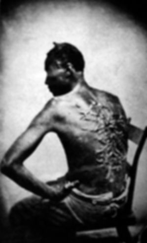 Treatment of slaves in the United States.