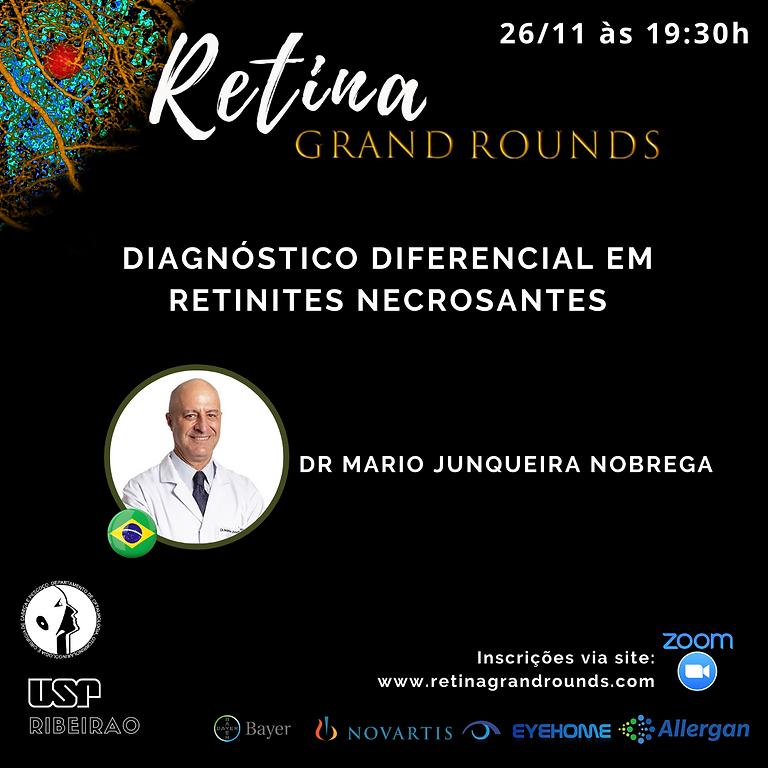Aula 24 - Diagnóstico diferencial em retinites necrosantes