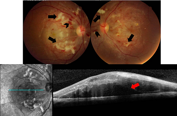 As retinografias superiores ilustram um quadro bilateral de múltiplas hemorragias (cabeça de seta) e manchas algodonosas (setas pretas), em um paciente jovem com níveis agudos elevados de pressão arterial. A tomografia de 10 coerência óptica inferior evidencia a presença de descolamento seroso de retina associado (seta vermelha)