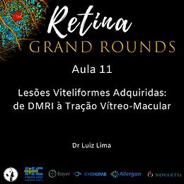 Aula 11 Lesões Viteliformes Adquiridas: de DMRI à Tração Vítreo-Macular