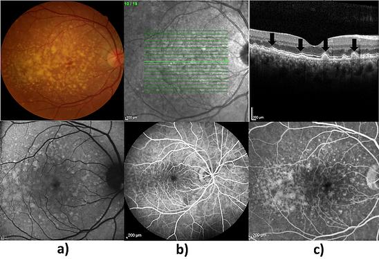 FIGURA 1: Nas imagens superiores observamos as drusas na retinografia colorida e OCT, respectivamente. Na retinografia notam-se as múltiplas lesões amareladas, arrendondas, as quais aparecem no OCT como elevações sob o epitélio pigmentadoda retina. As imagens inferiores evidenciam: a) foto utilizando-se a técnica de autofluorescência pelo estímulo do laser azul. Nota-se hiperautofluorescência das drusas. b) e c) Após a injeção do corante, nota-se hiperfluorescência por impregnação das drusas nas fases arteriovenosa e venosa da angiofluoresceinografia.