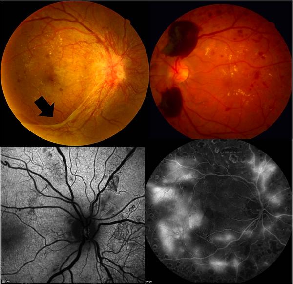 As duas retinografias coloridas superiores ilustram duas manifestações da retinopatia diabética proliferativa